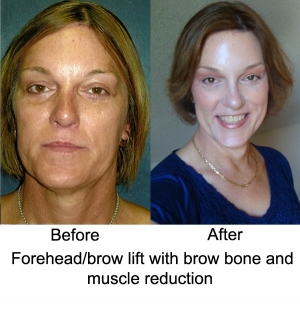 Fore_Head_Brow_Lift