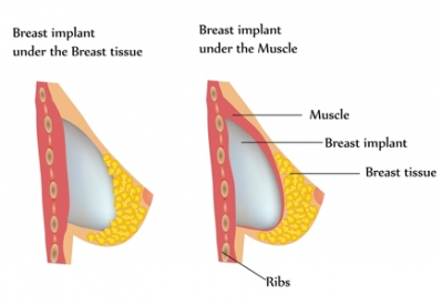 breast_implants_illustration