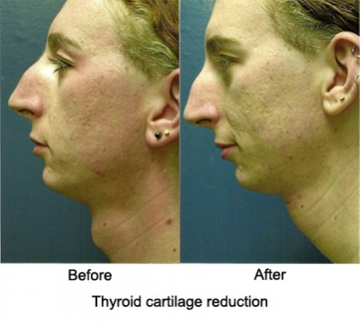 thyroid_cartilage reduction1