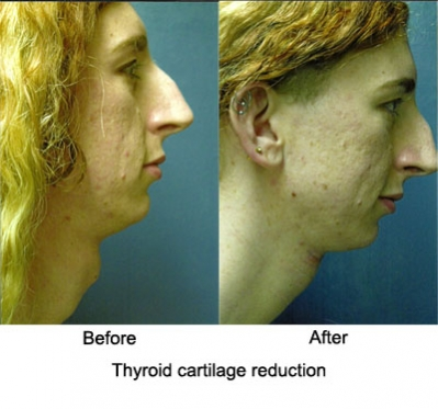 thyroid_cartilage reduction3